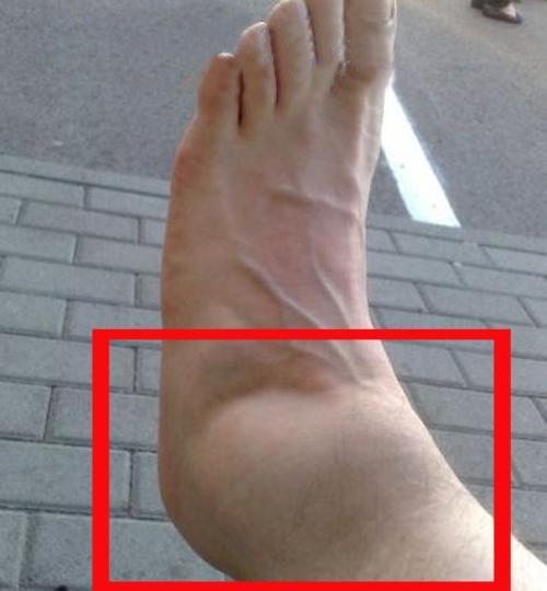 того, что такое разрыв связок на ноге живы ветераны