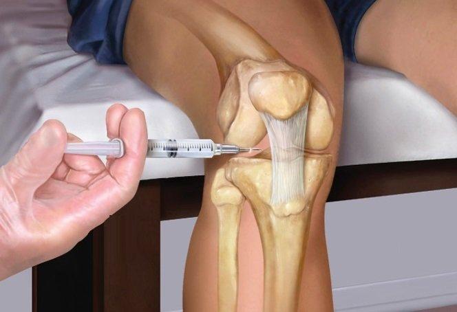 Сколько стоит сделать укол в коленный сустав