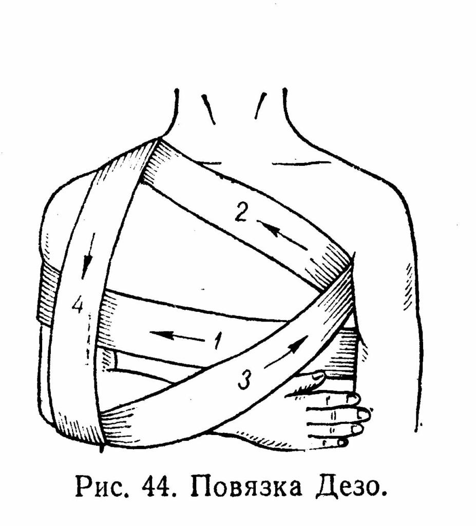 Повязка при вывихи плеча своими руками
