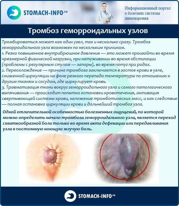 Анальный тромбоз как лечить знаю