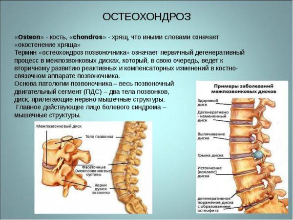 Заболевание остеохондроза и как лечить грыжа позвоночника