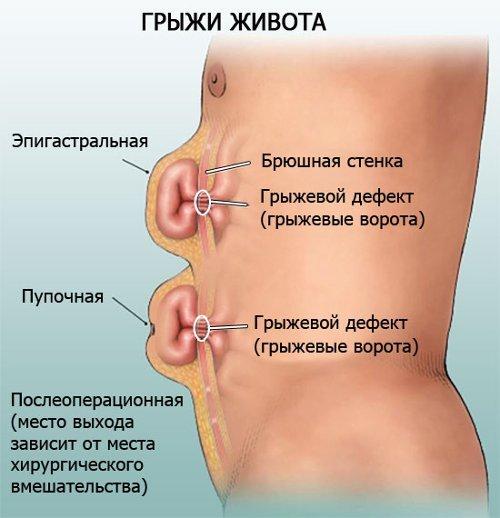 Протрузия желудка