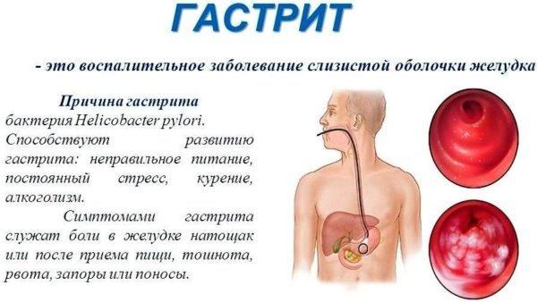 Изжога после курения причины