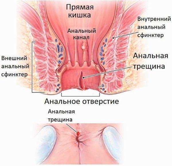 zud-analnogo-koltsa