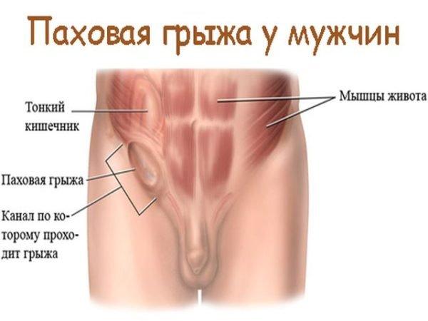Почему болит правый пах у мужчин