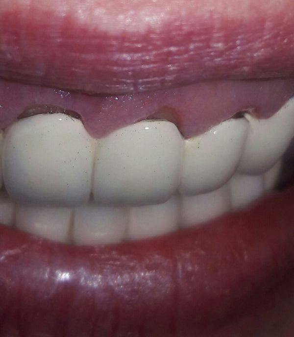 Почему чернеют зубы под коронкой