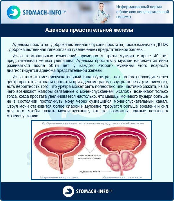 Противопоказания при аденоме простаты у мужчин