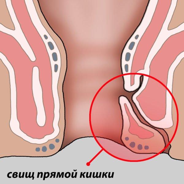 Оперативное лечение свища прямой кишки