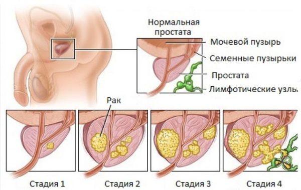 Простатит и рак простаты