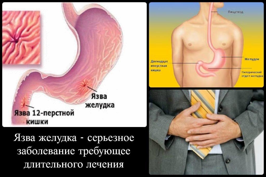 Как вылечить желудок от язвы в домашних условиях 182