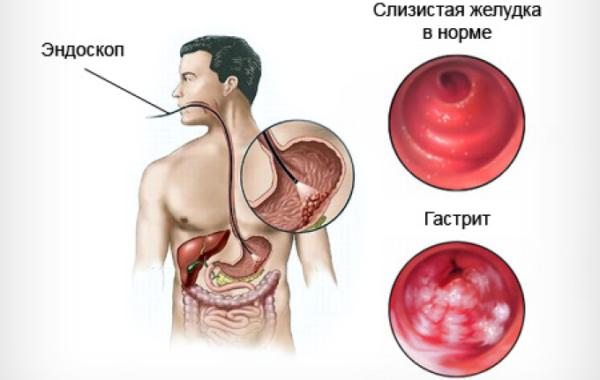 Что принимать беременной при отравлении желудка 19