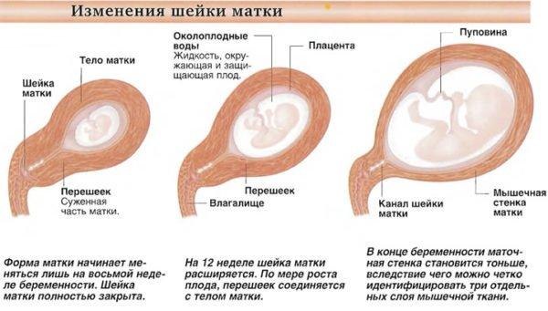 Почему у беременных короткая шейка матки 56